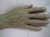 帶狀皰疹物理治療分享:1280547371.jpg