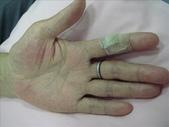 帶狀皰疹物理治療分享:1280547374.jpg